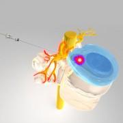 Behandlung_Laser